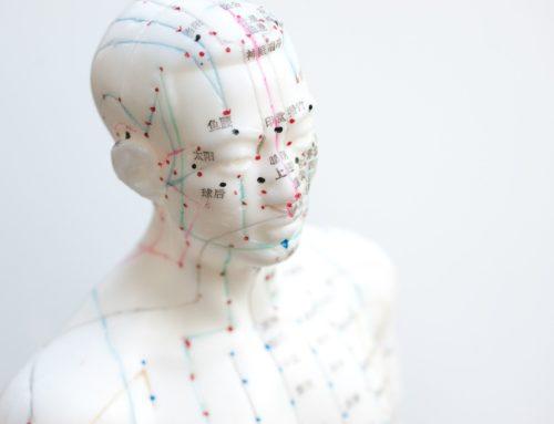 Akupunktur gegen Kopfschmerzen wirksam?